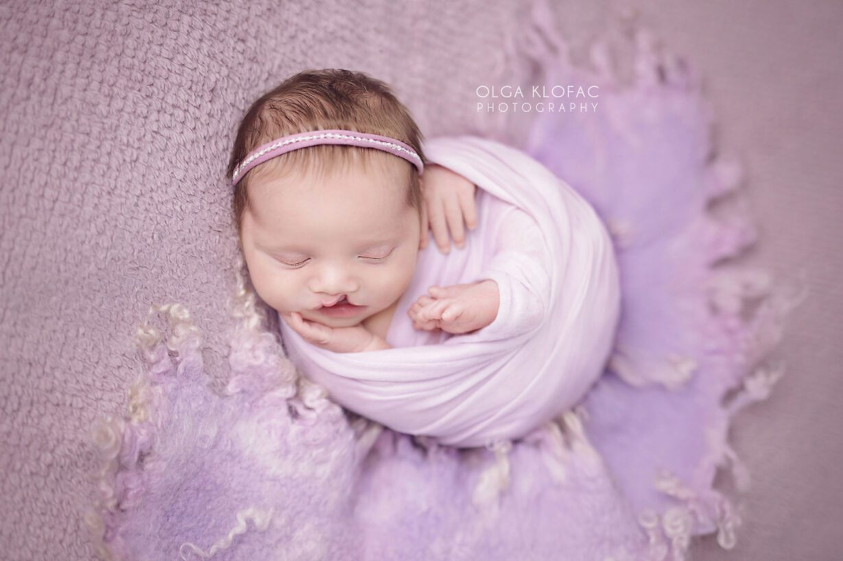 professional photograph of newborn baby girl with cleft palate by Olga Klofac Photography Mayo